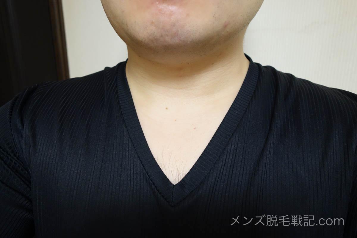Vネットから見える胸毛