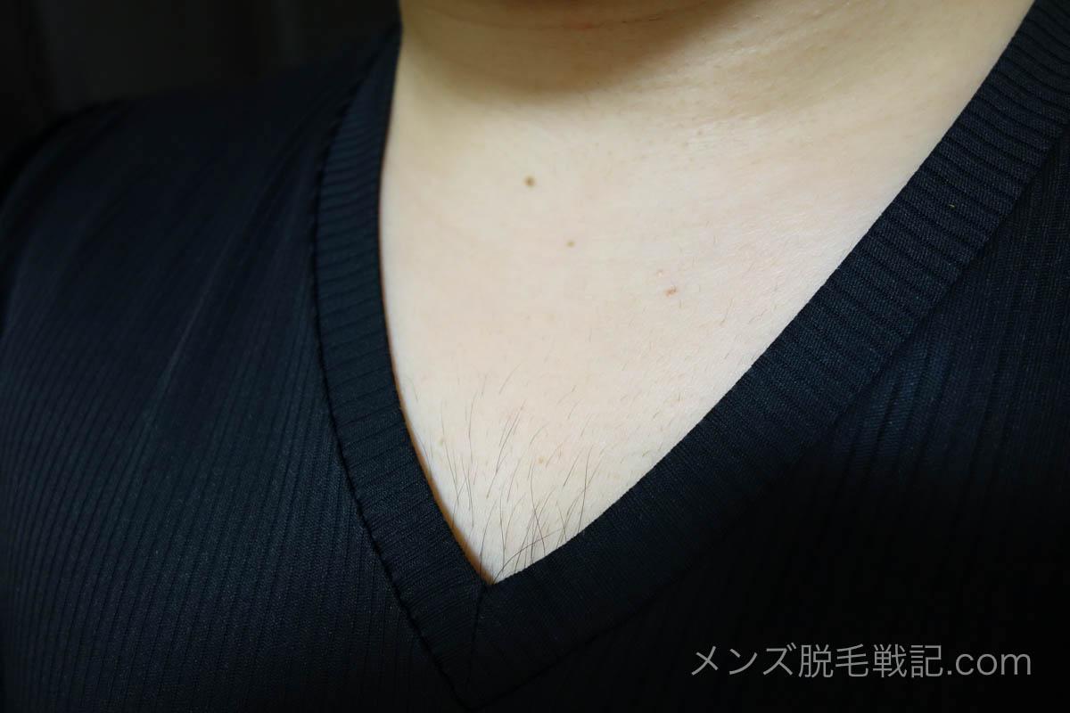 Vネックの胸毛を拡大
