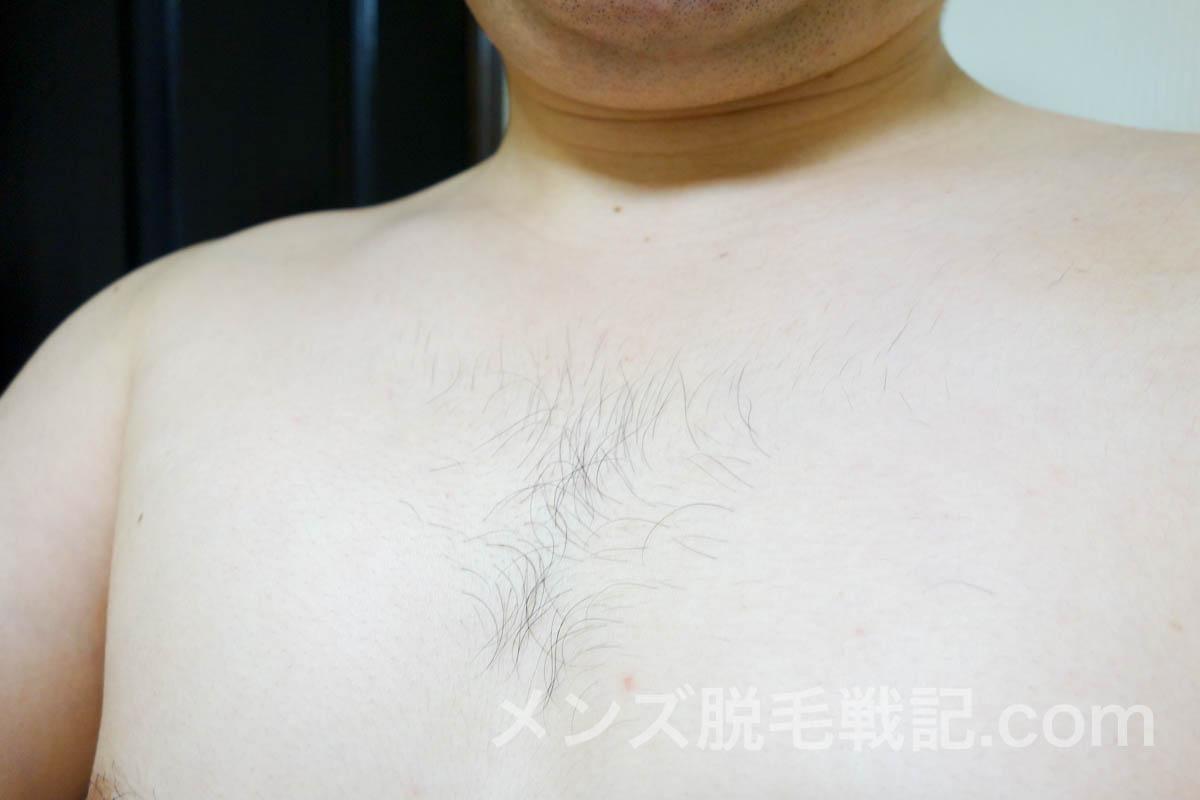 横からの胸毛