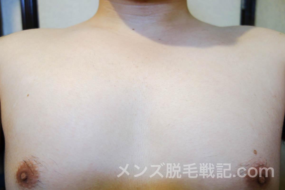 さらに、脱毛から1週間経過した胸毛がこちら
