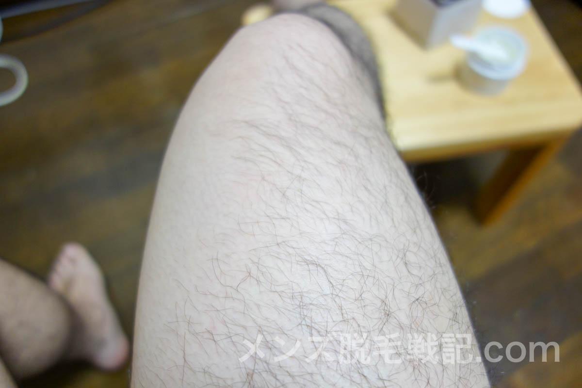 ブラジリアンワックス脱毛『シュークリア』の使い方