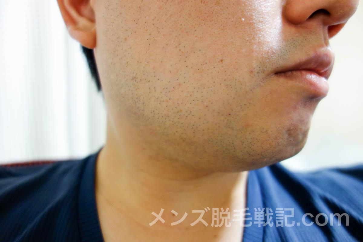 きちんと処理してるのに目立つ『青髭』の原因と対策まとめ