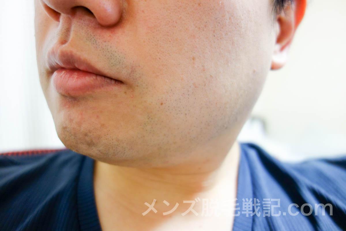 1日2回の髭剃りをするほど濃いヒゲを改善する3つの対策