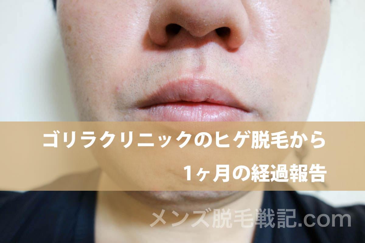 ゴリラクリニックのヒゲ脱毛から1ヶ月の経過報告