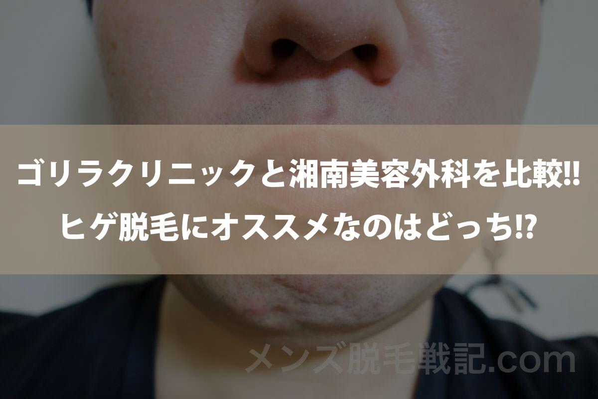 【口コミ評判】ゴリラクリニックと湘南美容外科を比較!!ヒゲ脱毛にオススメはどっち!?
