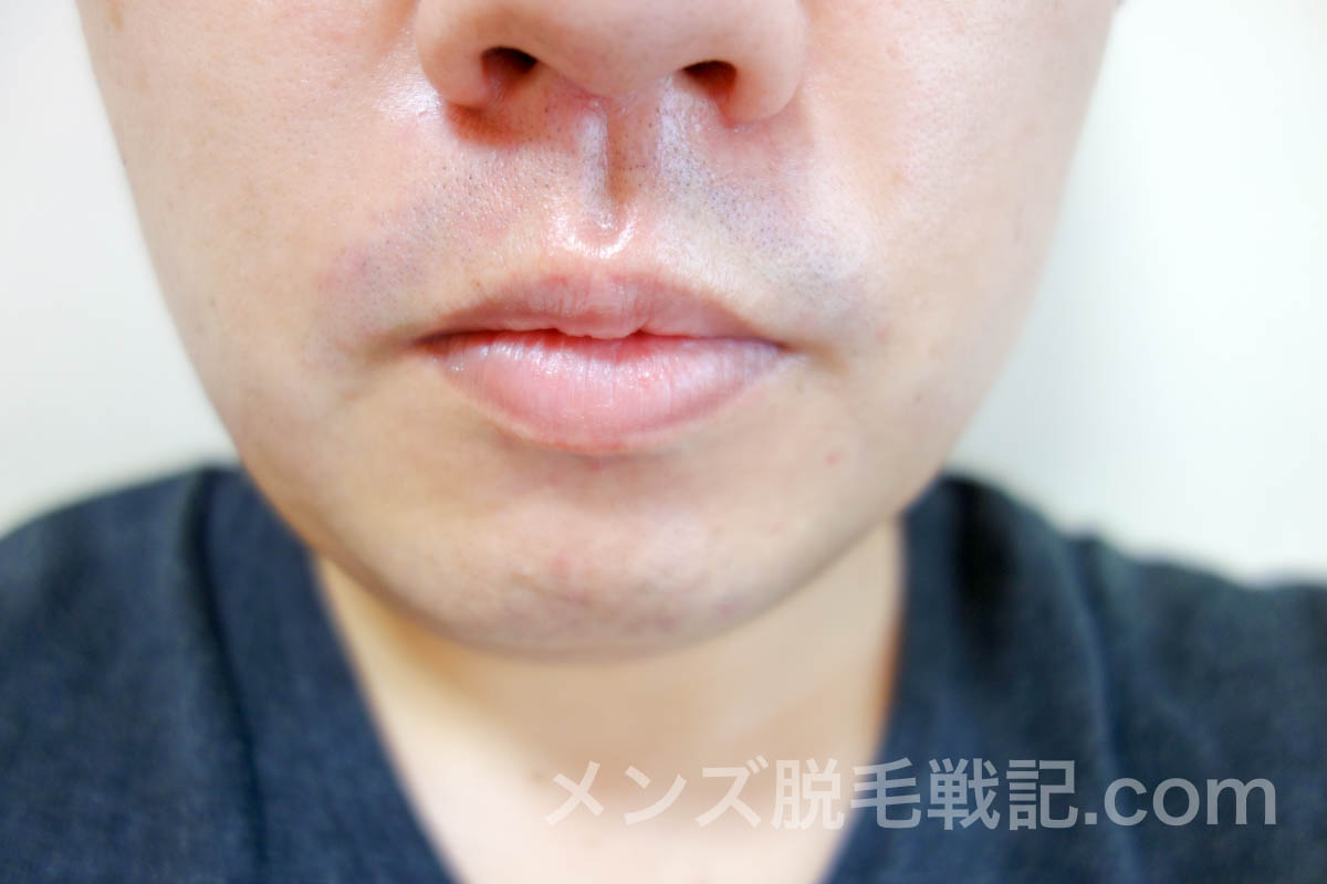 ヒゲ脱毛後の鼻下ヒゲ