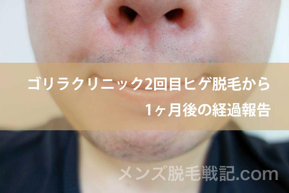ゴリラクリニック2回目ヒゲ脱毛から1ヶ月後の経過報告