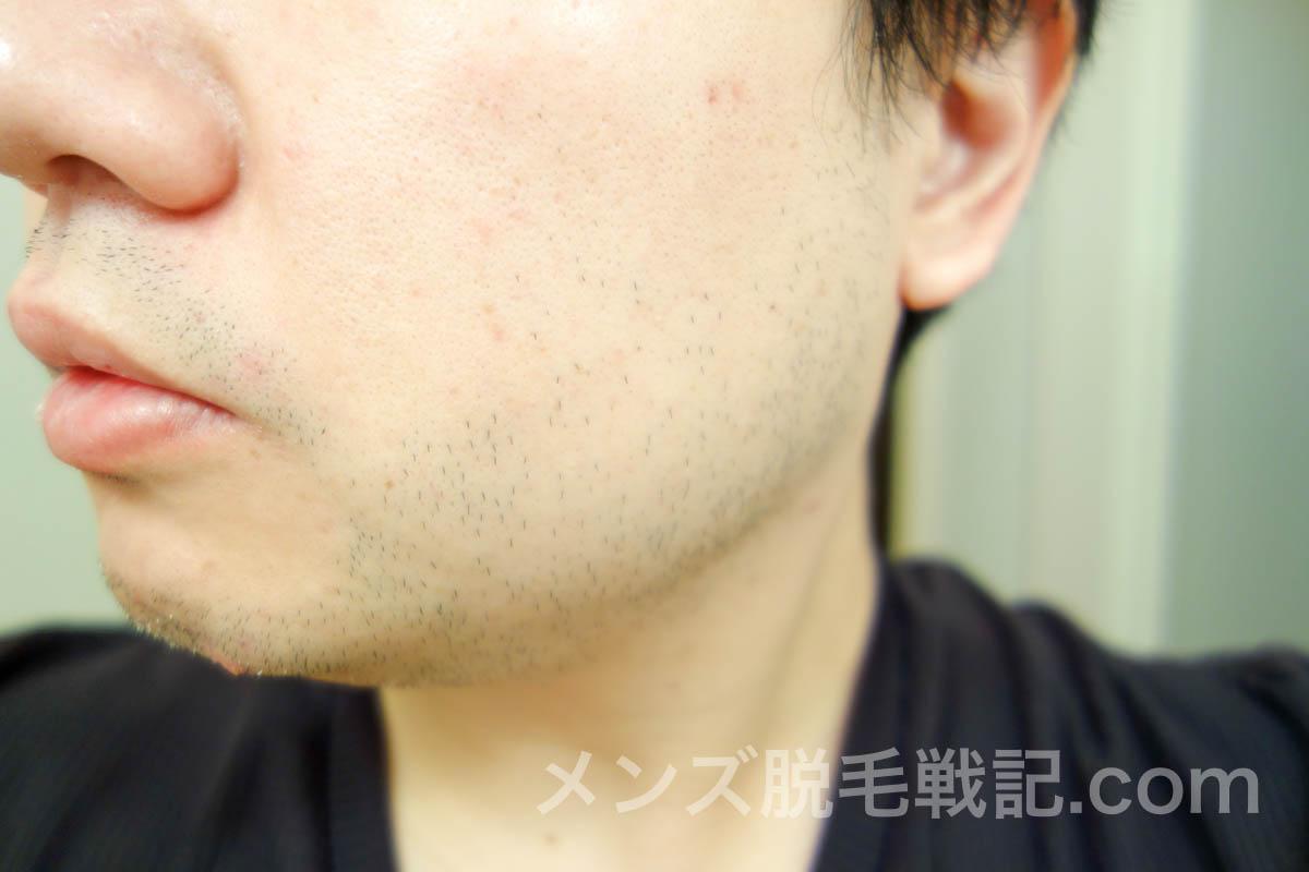 3回目脱毛当日の左頬髭