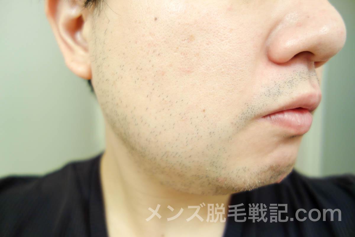3回目脱毛当日の右頬髭