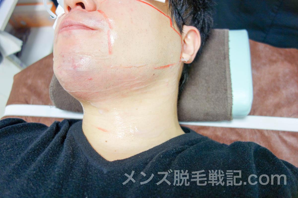 脱毛後のレーザーで赤くなった首