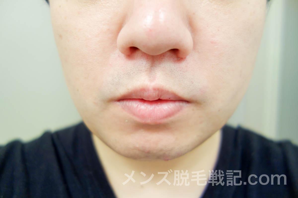 脱毛後の鼻下ヒゲ
