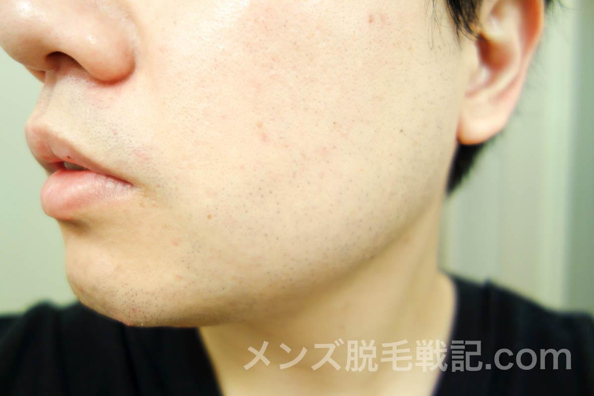 脱毛後の左頬ヒゲ