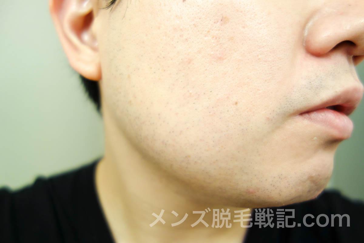 脱毛後の右頬ヒゲ
