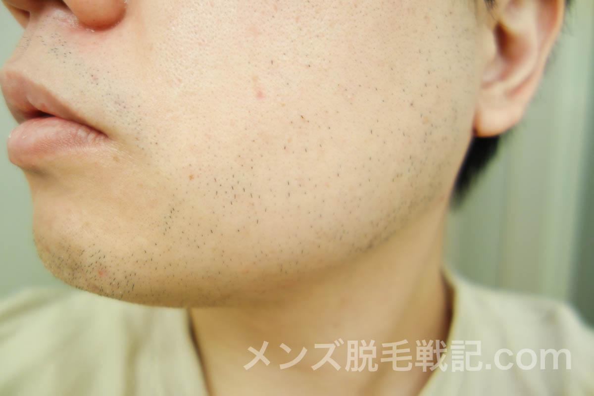 3回目ヒゲ脱毛から1ヶ月後の左アゴヒゲ