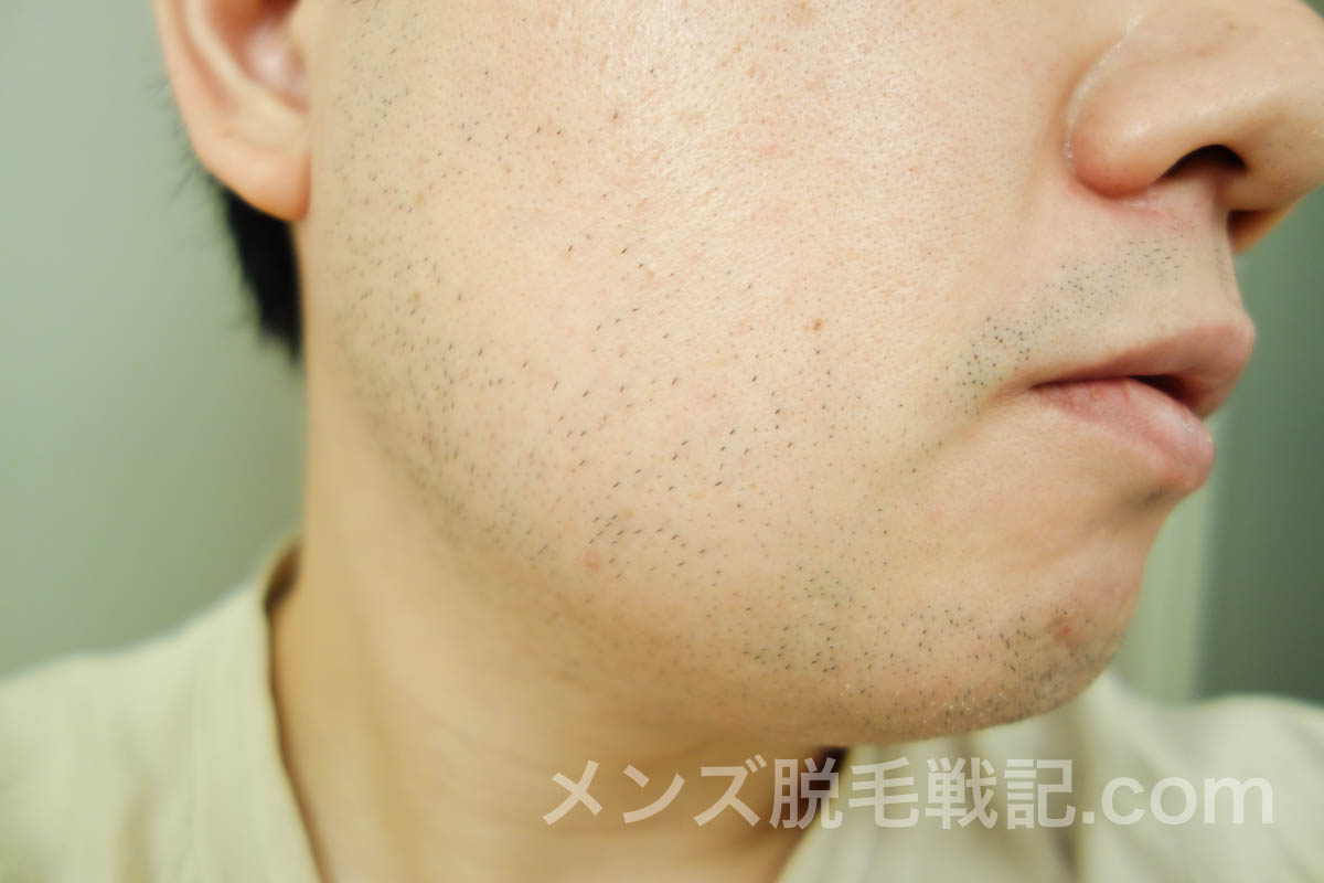 3回目ヒゲ脱毛から1ヶ月後の右アゴヒゲ