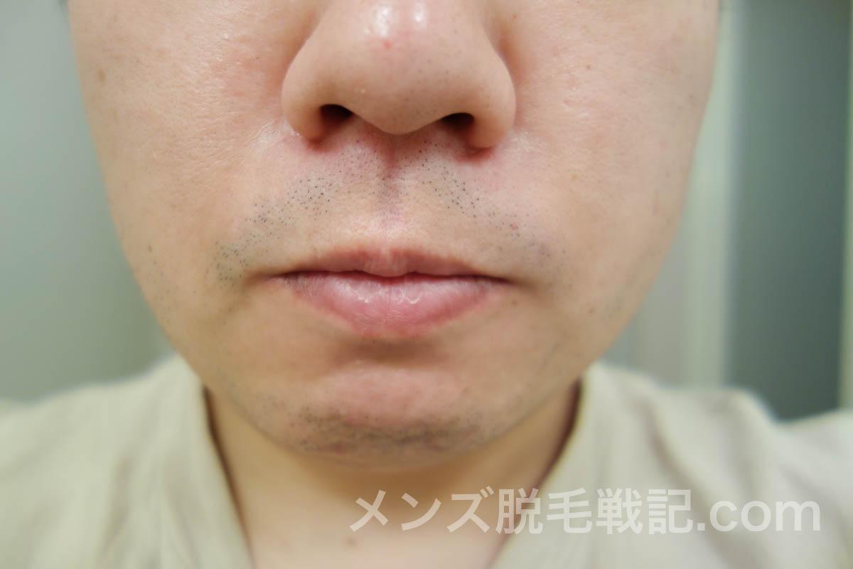 3回目ヒゲ脱毛から1ヶ月後の鼻下ヒゲ