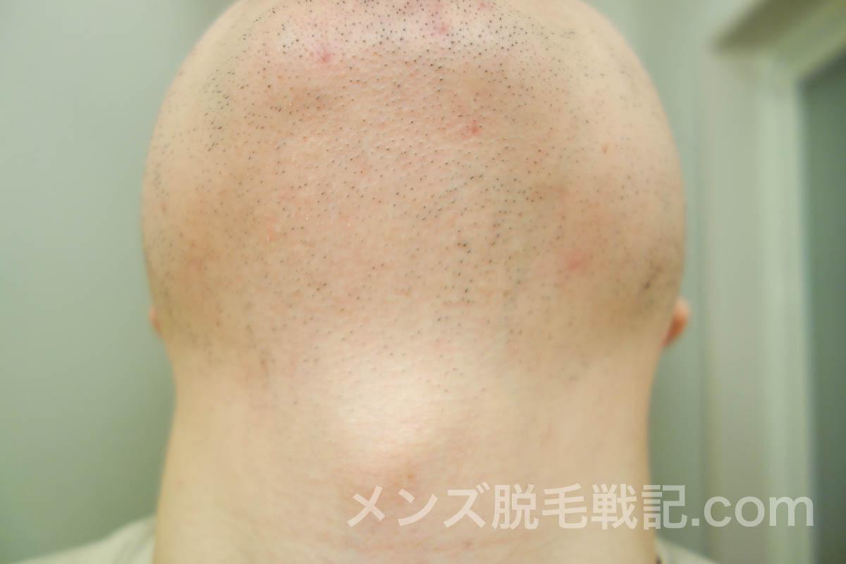 3回目ヒゲ脱毛から1ヶ月後のアゴ・首ヒゲ