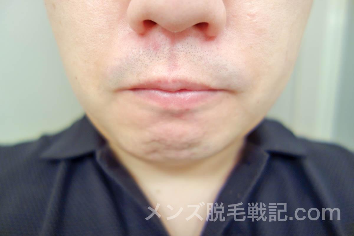 4回目脱毛後の鼻下ヒゲ