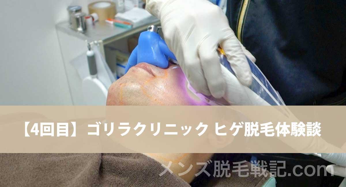 【ヒゲ脱毛:回数4回目】ゴリラクリニック メディオスター脱毛の動画も!