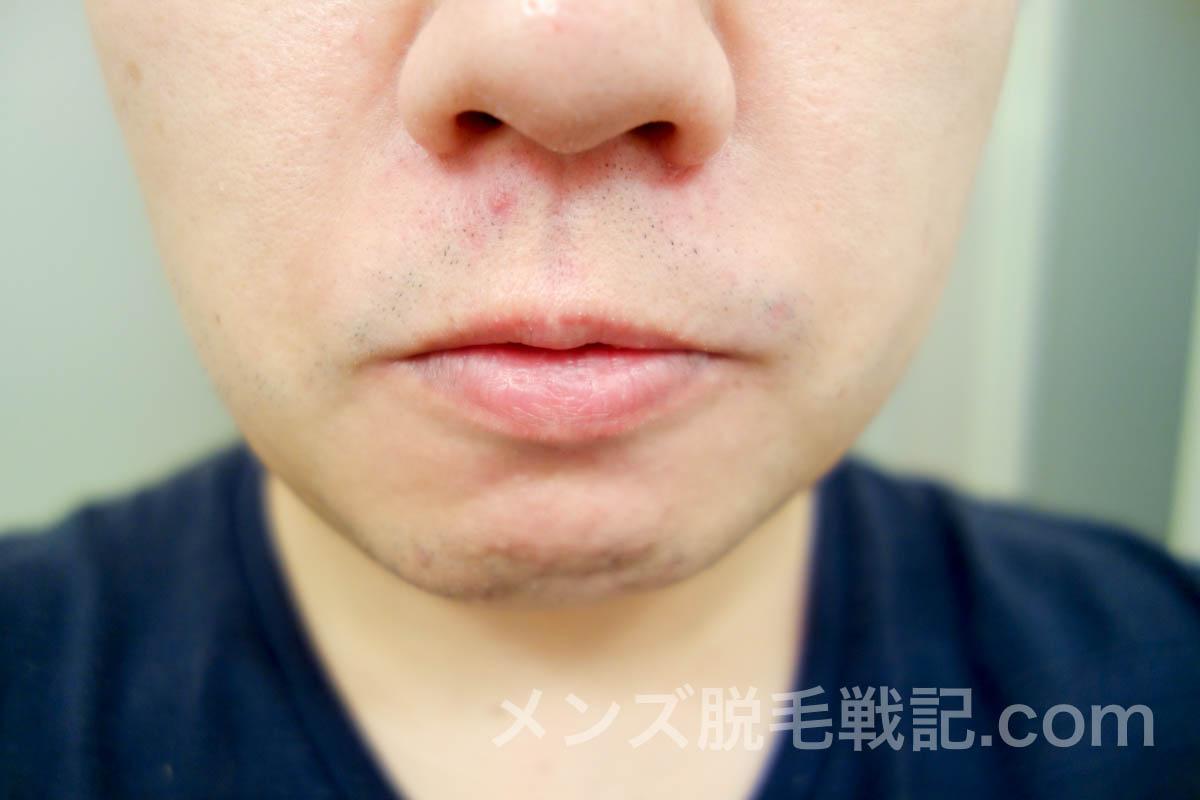 脱毛4回目から1ヶ月後の鼻下ひげ
