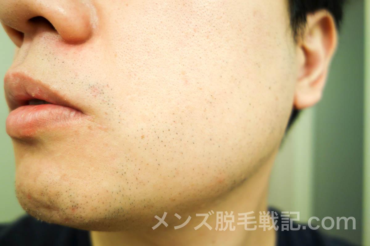 左頬のひげ