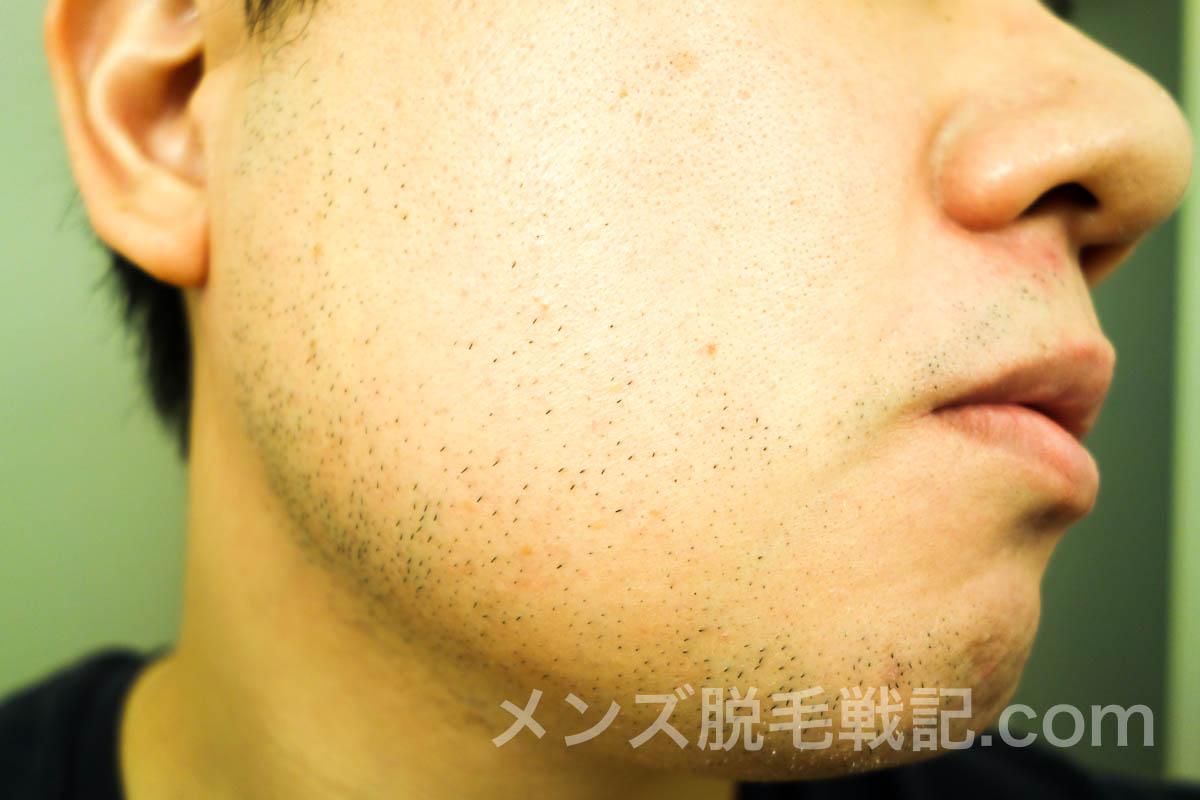 右頬のひげ