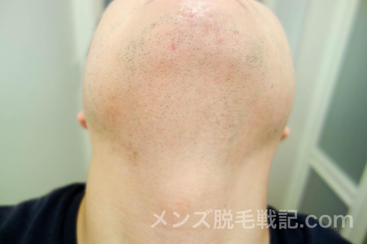 顎・首のひげ