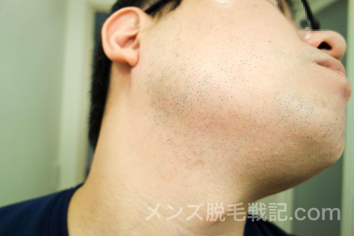 右側の首ひげ