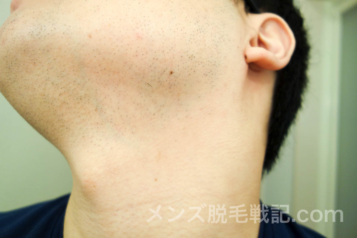 左側の首ひげ