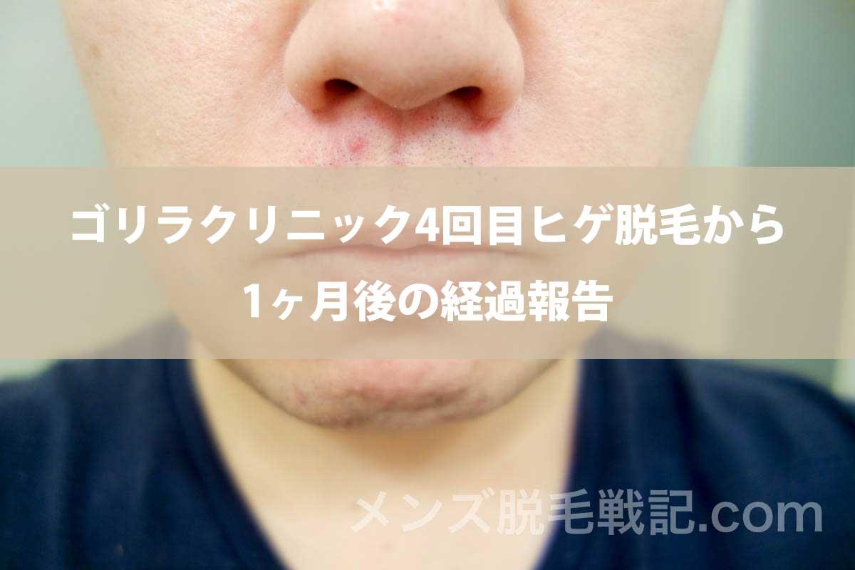 ゴリラクリニック4回目ヒゲ脱毛から1ヶ月後の経過報告