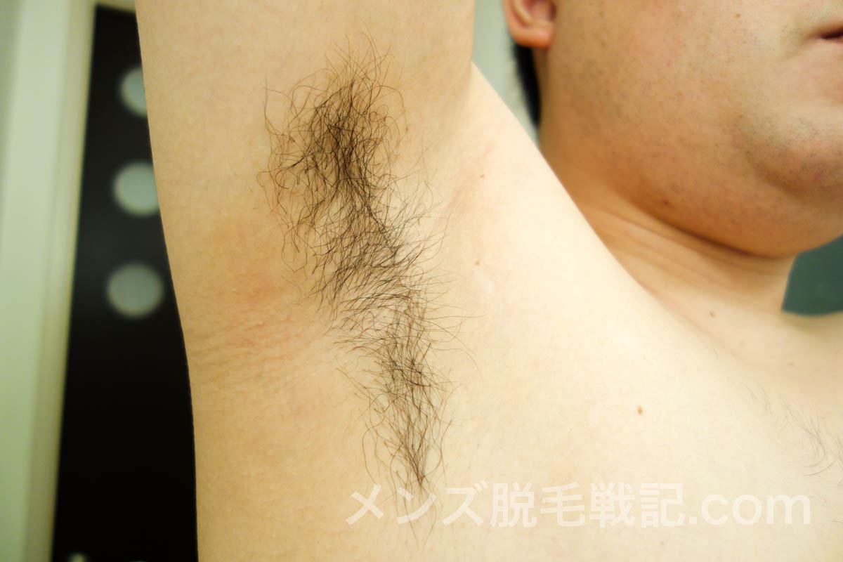 脱毛前の脇毛