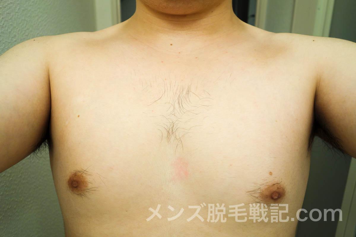 脱毛前の胸毛