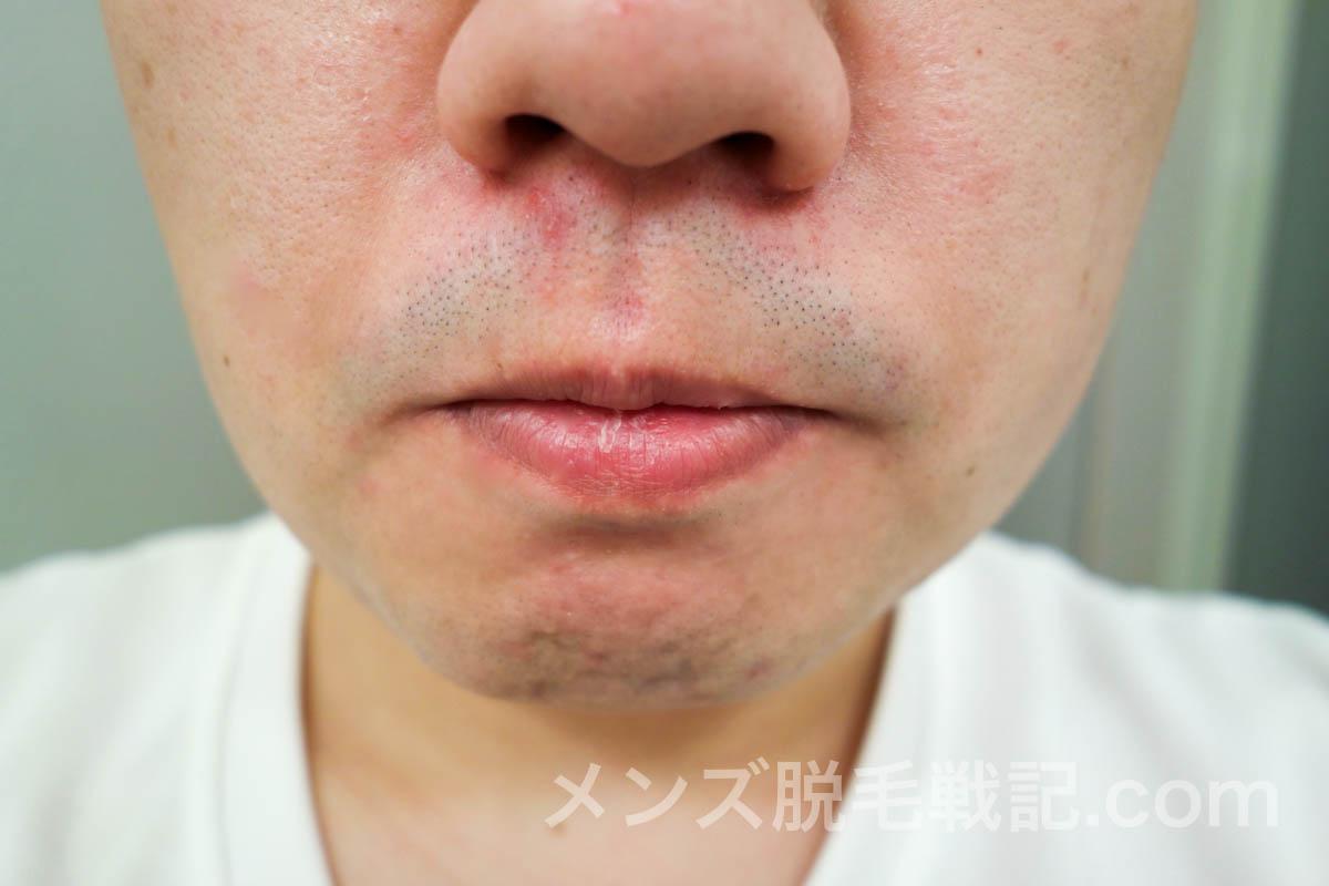 5回目脱毛前の鼻下ヒゲ