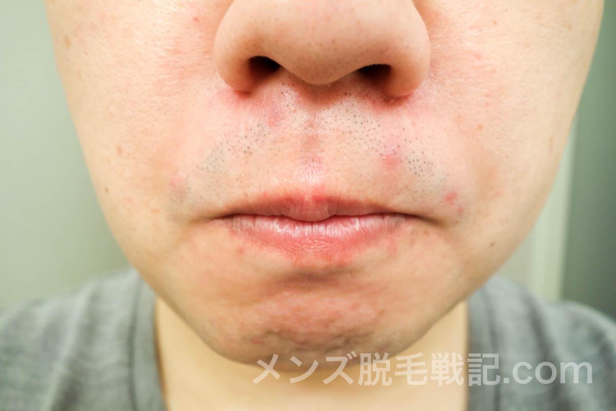 5回目ヒゲ脱毛から1ヶ月の鼻下