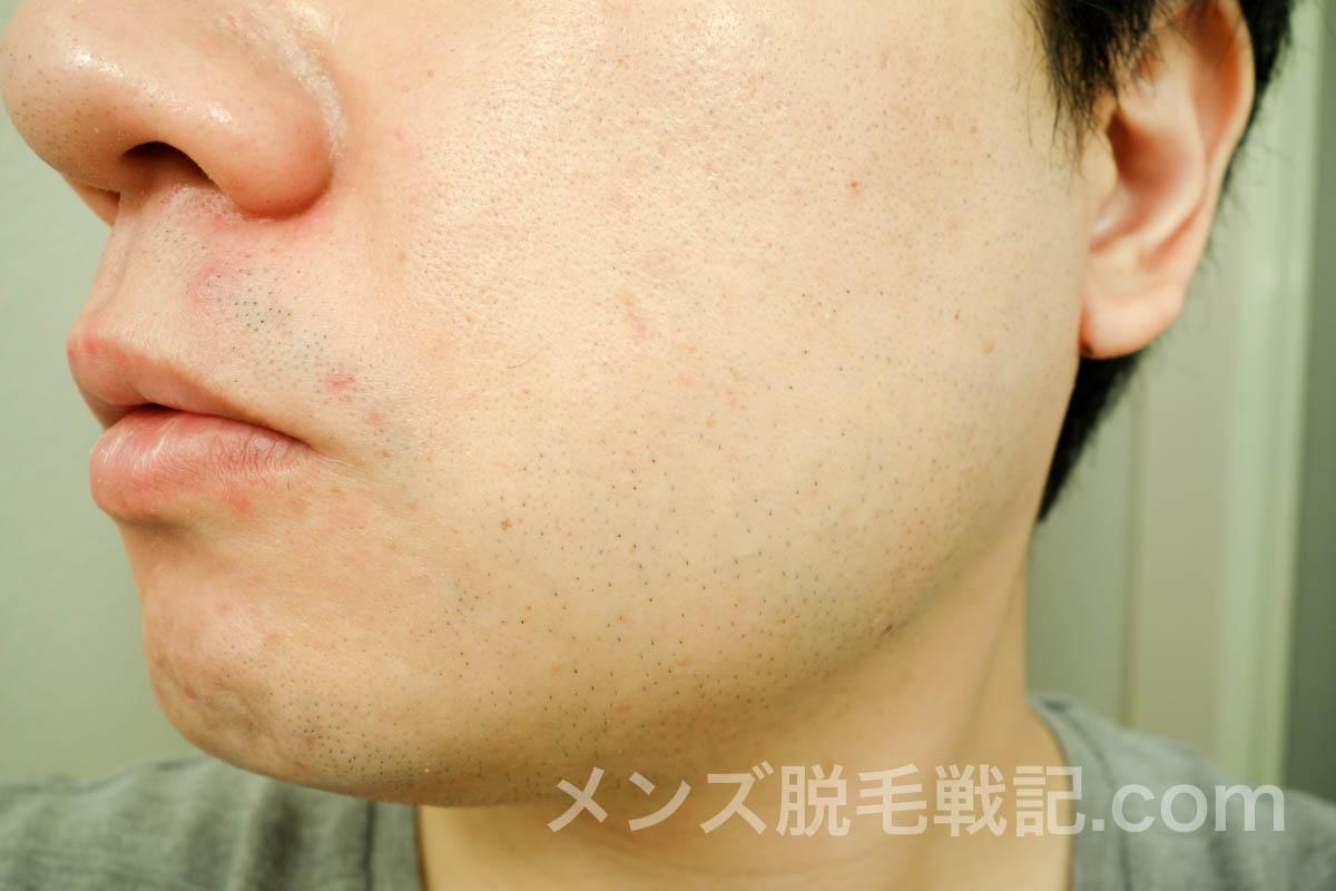 5回目ヒゲ脱毛から1ヶ月の左頬