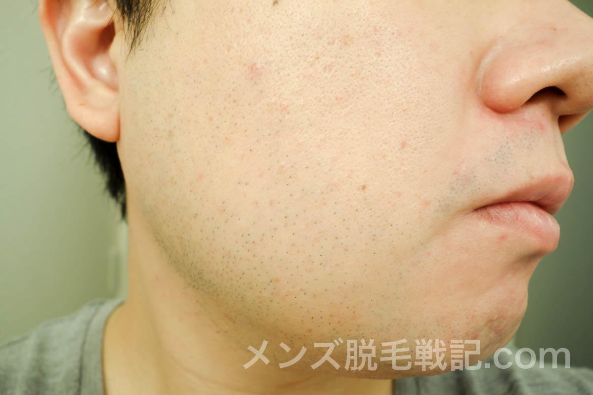 5回目ヒゲ脱毛から1ヶ月の右頬