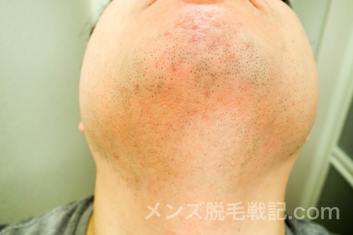 5回目ヒゲ脱毛から1ヶ月のアゴ首
