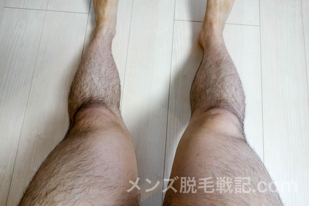 脱毛前の足