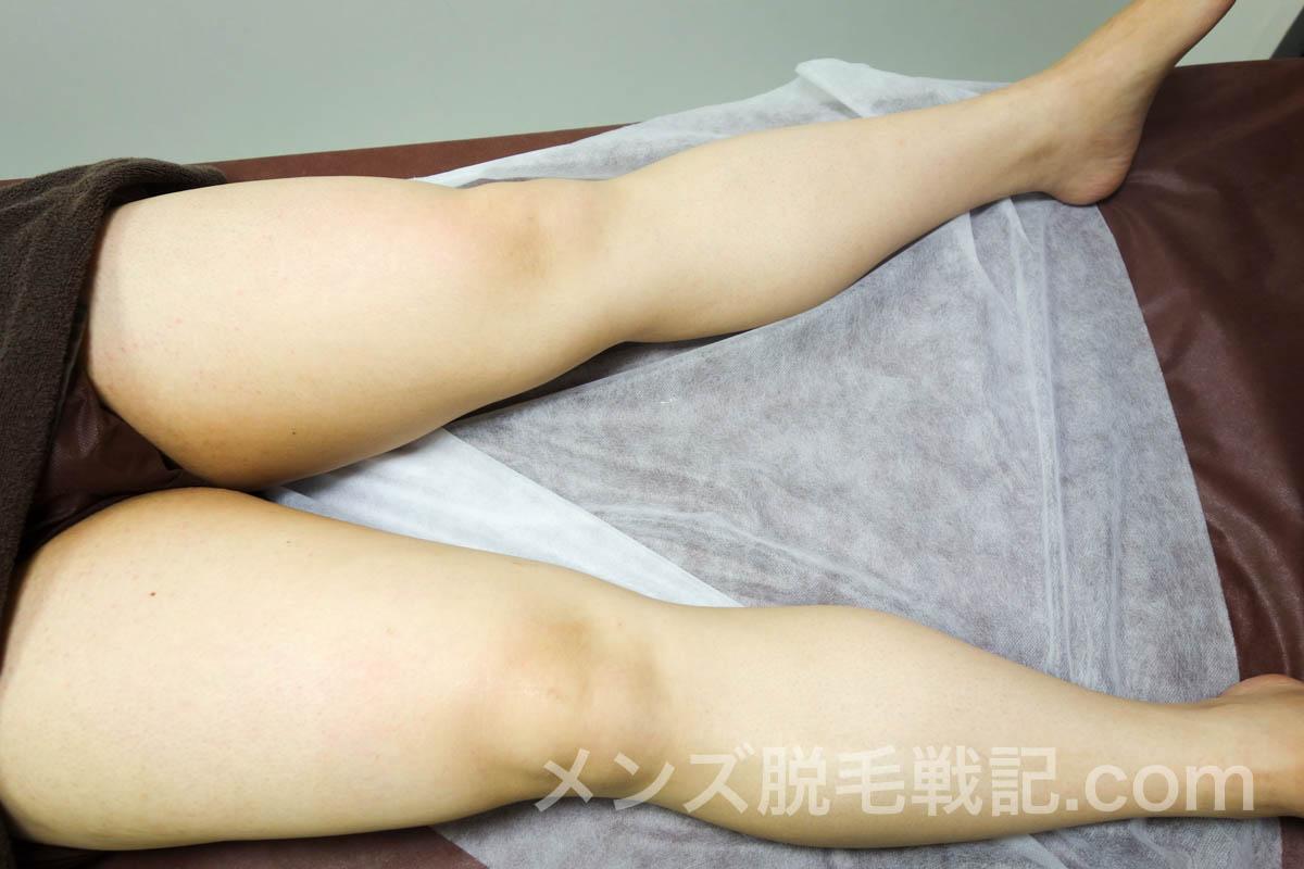 脱毛後の足