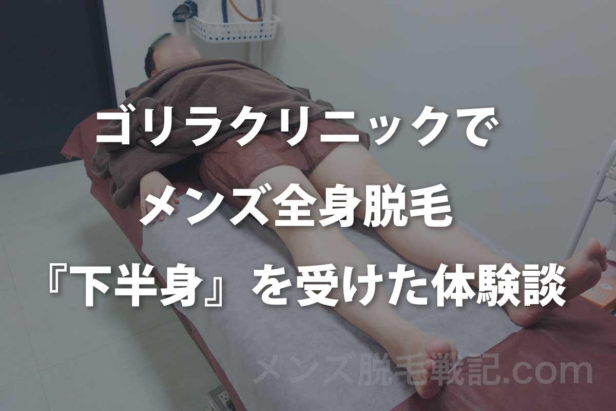 【ゴリラクリニック】メンズ全身脱毛(下半身)をしてきた口コミ体験談