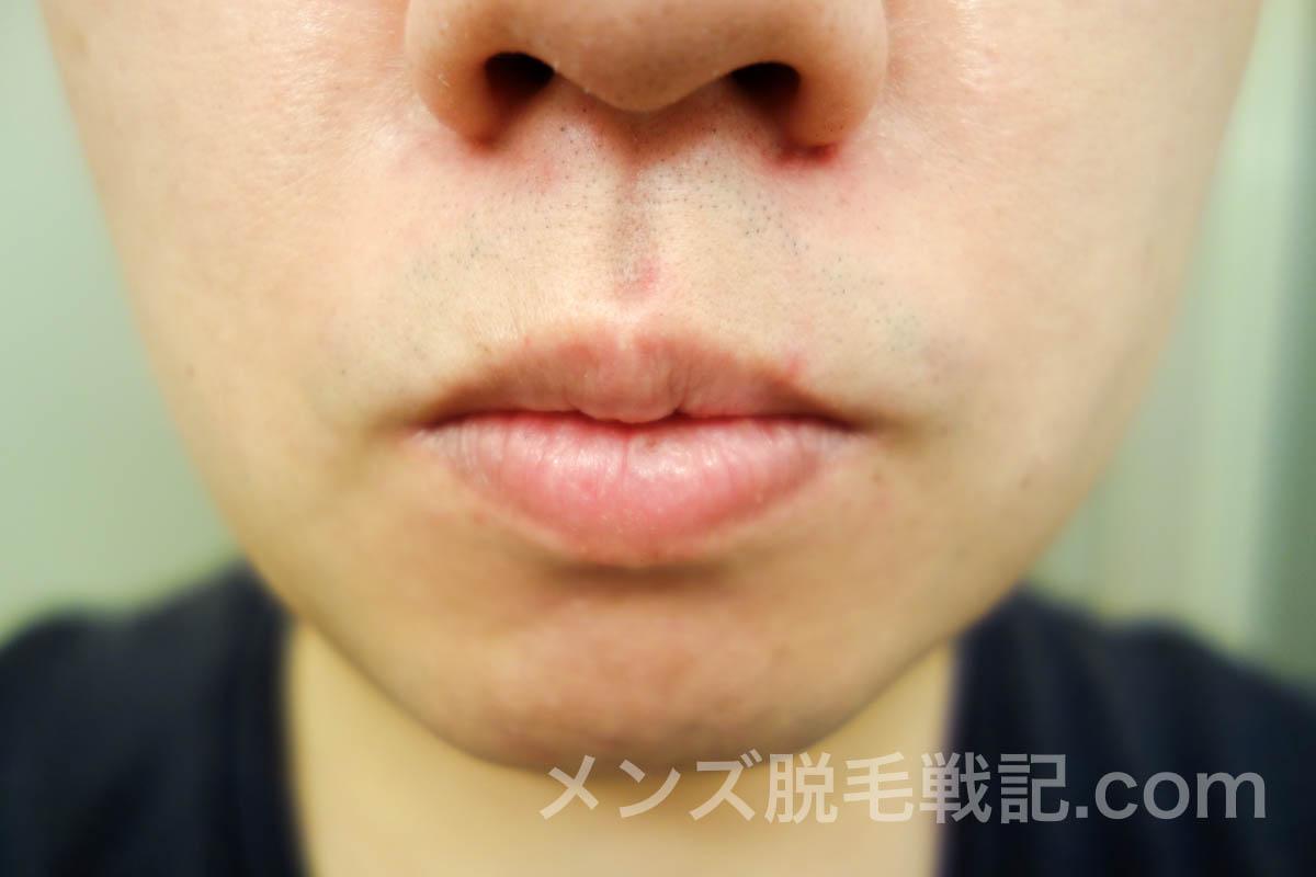 ヒゲ脱毛6回目から1ヶ月後の鼻下ヒゲ