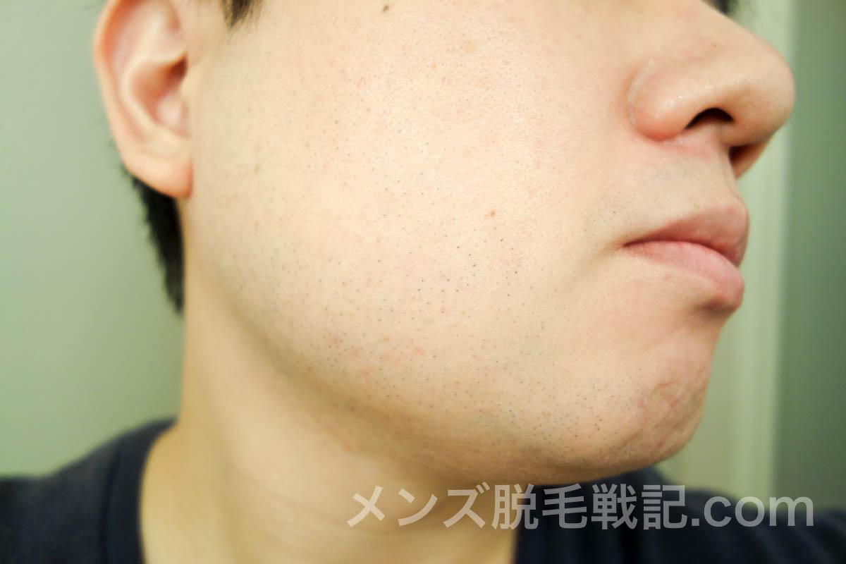 ヒゲ脱毛6回目から1ヶ月後の右アゴヒゲ