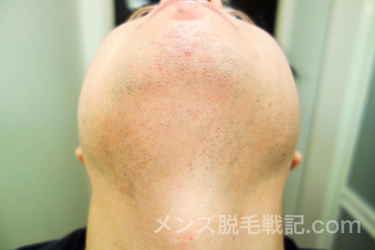 ヒゲ脱毛6回目から1ヶ月後のアゴ首ヒゲ