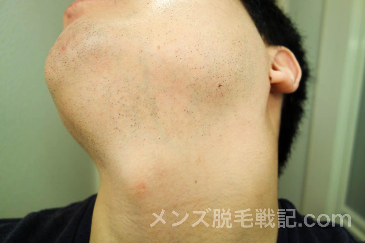 ヒゲ脱毛6回目から1ヶ月後の左首ヒゲ