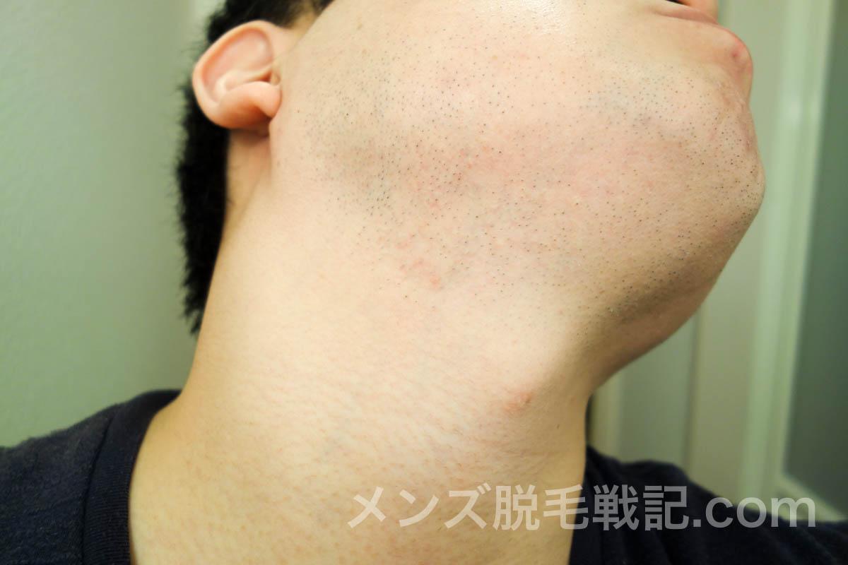 ヒゲ脱毛6回目から1ヶ月後の右首ヒゲ