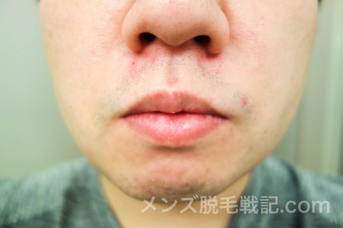 脱毛前の鼻下ヒゲ