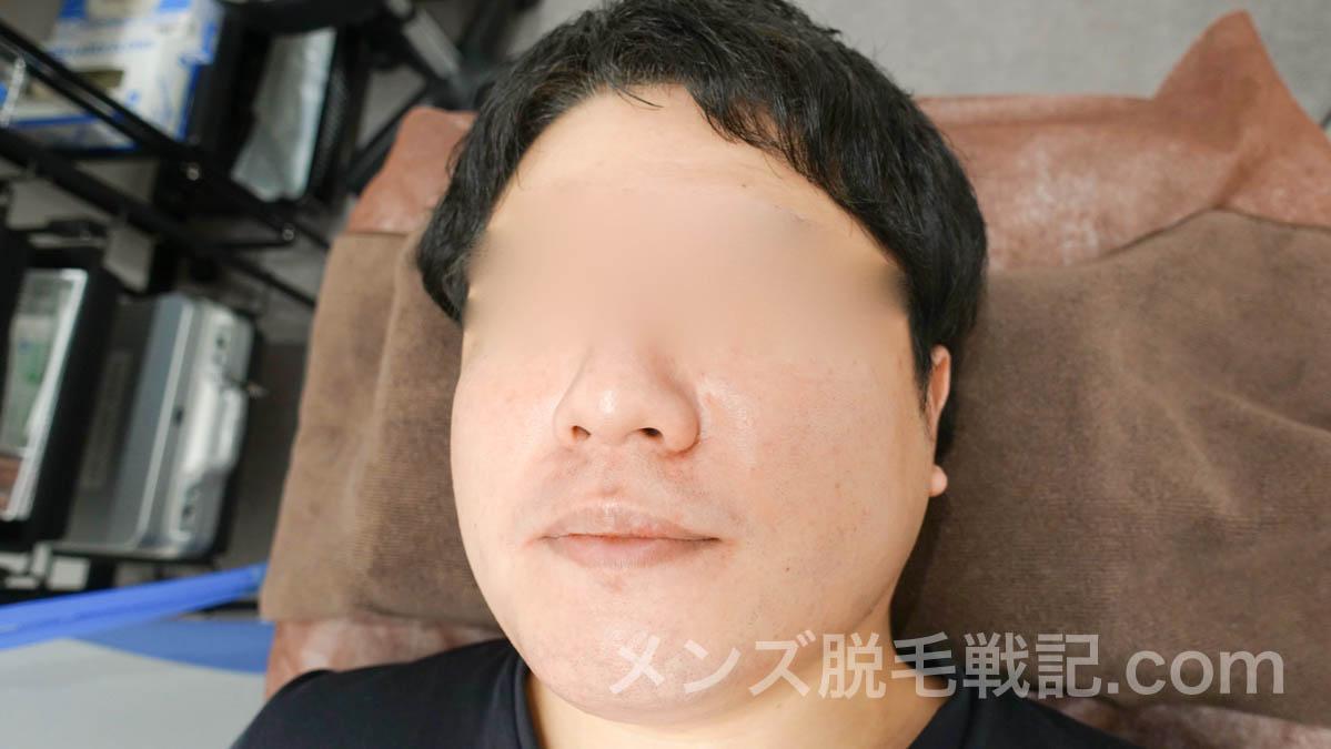 脱毛後の肌